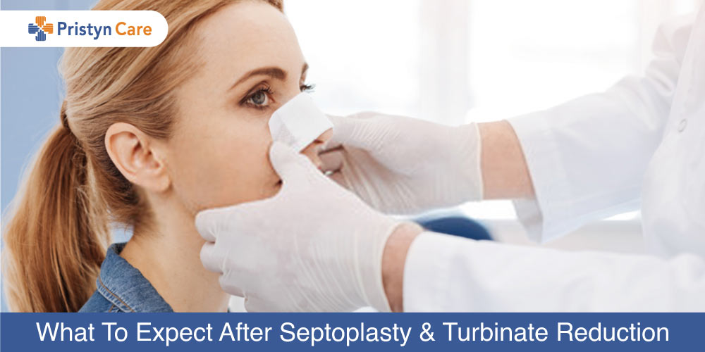 What-To-Expect-After-Septoplasty-and-Turbinate-Reduction