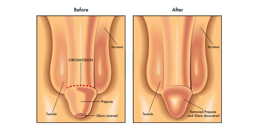 circumcised penis