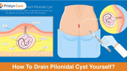 how to drain pilonidal cyst yourself