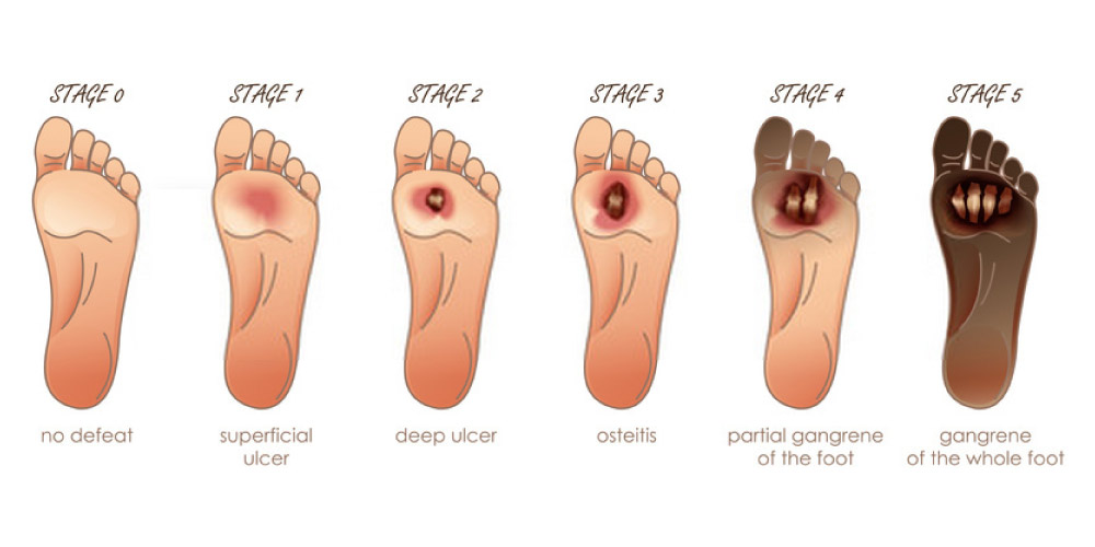 Diabetic Foot Ulcers Symptoms Causes And Risk Factors Pristyn