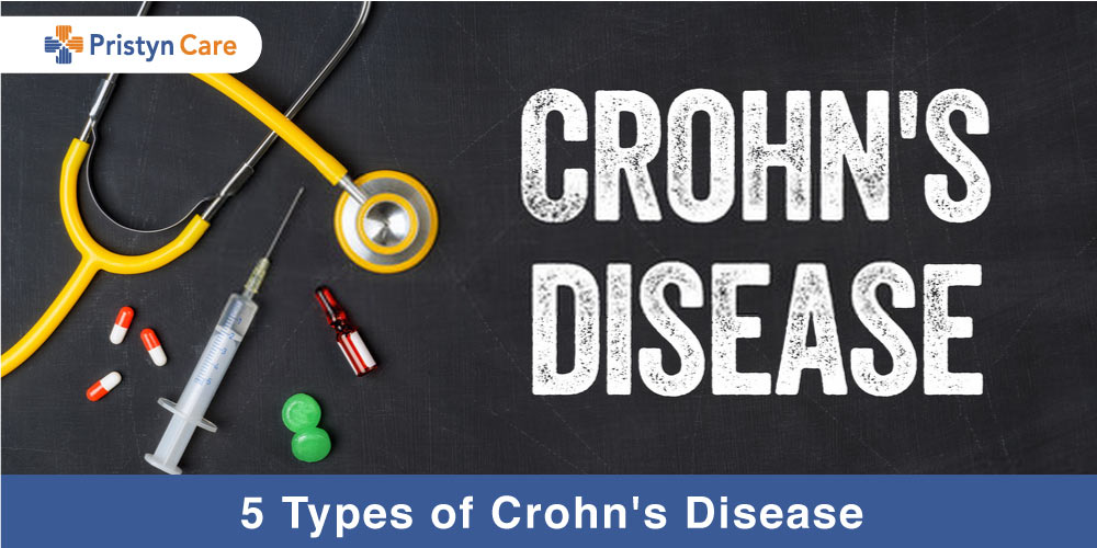 5 types of crohn's disease
