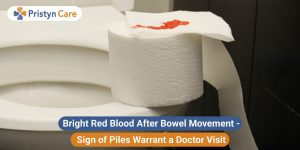 Bright red blood after bowel movement