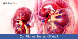 Can-Kidney-Stones-Kill-You
