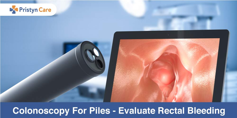 Colonoscopy For Piles