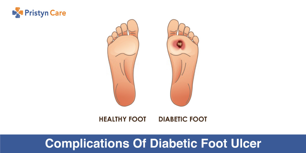 Complications-Of-Diabetic-Foot-Ulcer