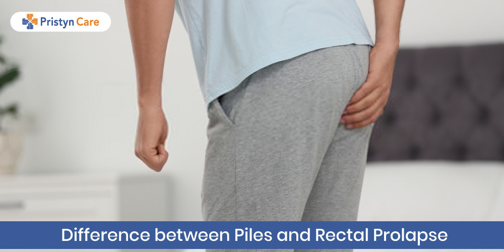 Difference between Piles and rectal prolapse