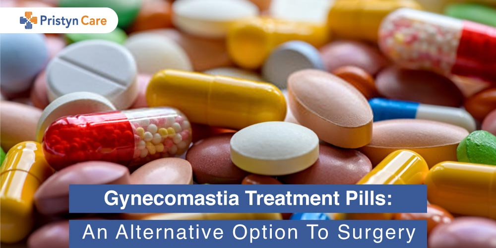 Gynecomastia-Treatment-Pills-An-Alternative-Option-To-Surgery