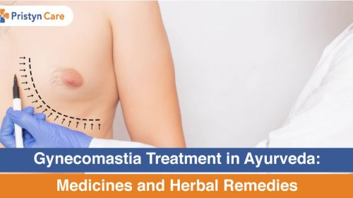 Gynecomastia-Treatment-in-Ayurveda-Medicines-and-Herbal-Remedies