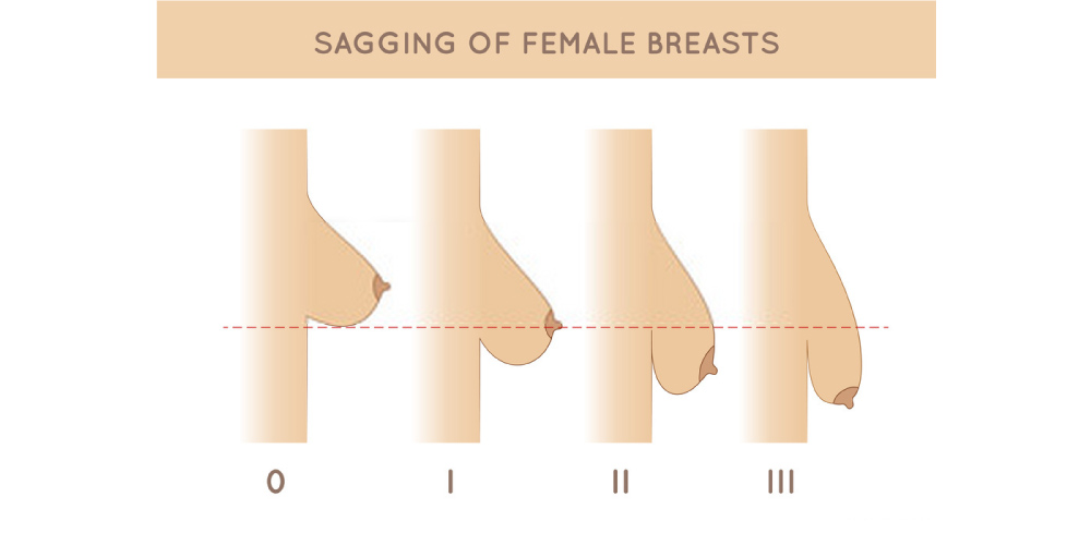 stages of sagging breasts after pregnancy