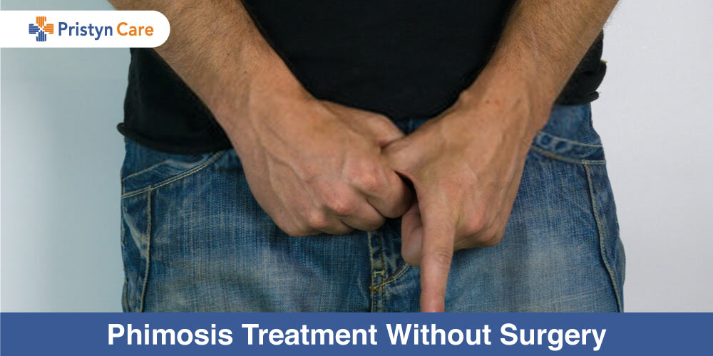 Phimosis-Treatment-Without-Surgery