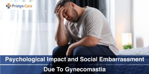 Psychological-Impact-and-Social-Embarrassment-Due-To-Gynecomastia