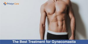 The-Best-Treatment-for-Gynecomastia