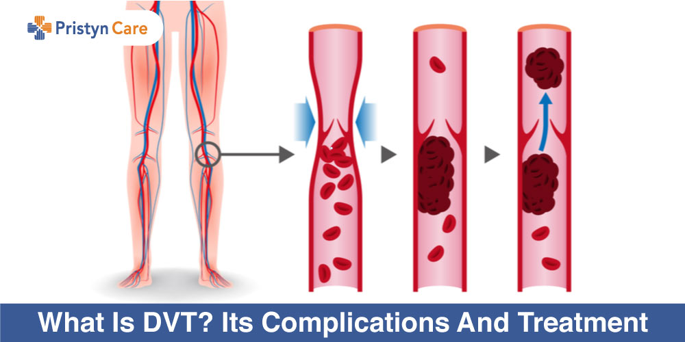 What-Is-DVT-Its-Complications-And-Treatment