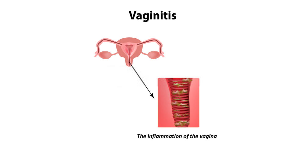 What causes Vaginitis?