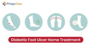 diabetic foot ulcer home treatment