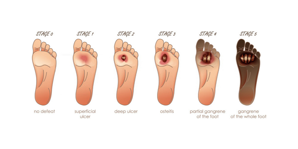 Complications Of Diabetic Foot Ulcer Pristyn Care