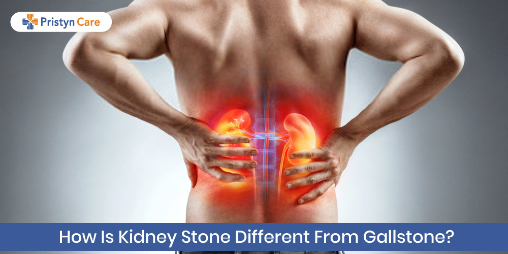 how is kidney stone different from gallstone