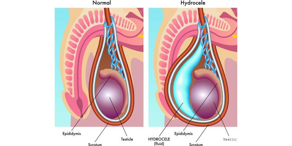 hydrocele- swelling in the scrotum