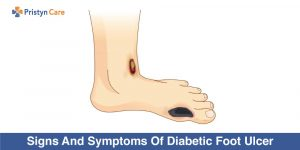 signs and symptoms of diabetic foot ulcer