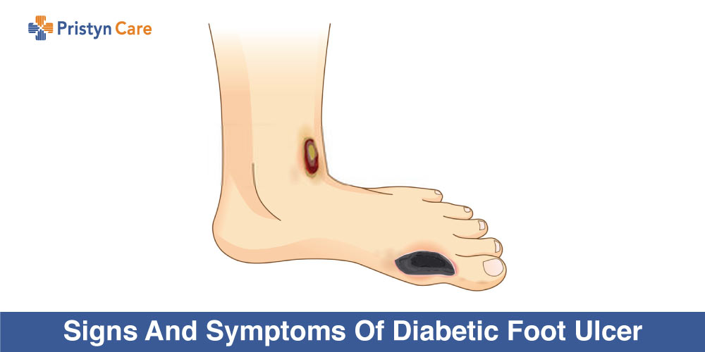 Signs And Symptoms Of Diabetic Foot Ulcer Pristyn Care