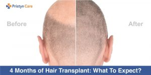 4-Months-of-Hair-Transplant-What-To-Expect