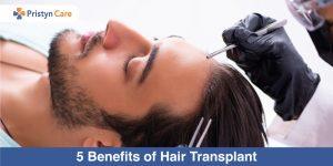 5-Benefits-of-Hair-Transplant