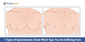 7-Types-of-Gynecomastia-Know-Which-Type-You-Are-Suffering-From