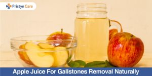 Apple juice for gallstones removal naturally