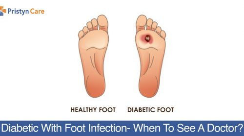 Diabetic-With-Foot-Infection-When-To-See-A-Doctor