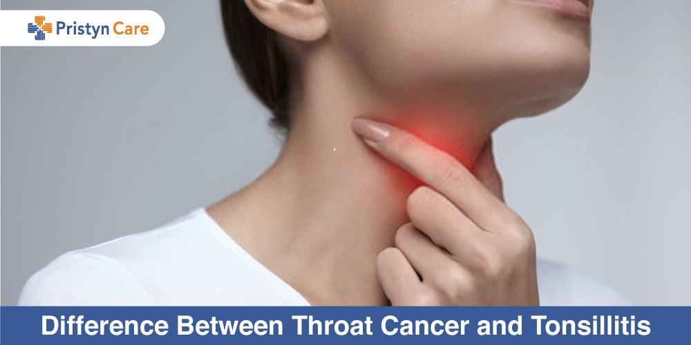 Difference-Between-Throat-Cancer-and-Tonsillitis