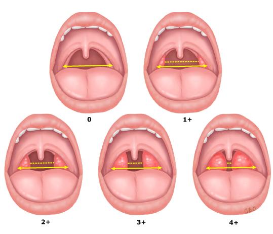 Grading_of_tonsil_size