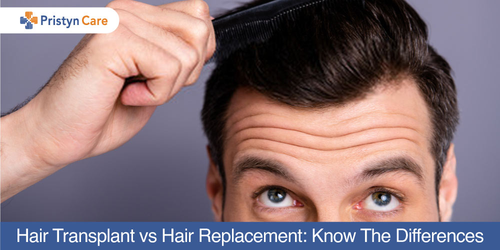 Hair-Transplant-vs-Hair-Replacement-Know-The-Differences