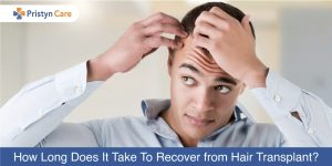 How-Long-Does-It-Take-To-Recover-from-Hair-Transplant
