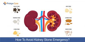 How-To-Avoid-Kidney-Stone-Emergency