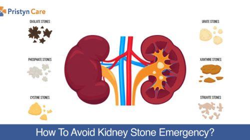 How-To-Avoid-Kidney-Stone-Emergency