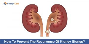 How-To-Prevent-The-Recurrence-Of-Kidney-Stones