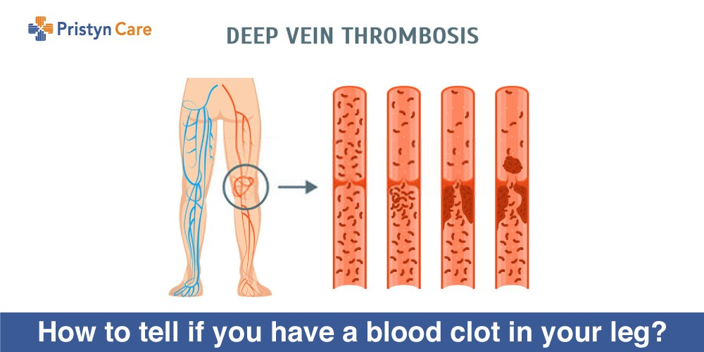 How-to-tell-if-you-have-a-blood-clot-in-your-leg (1)
