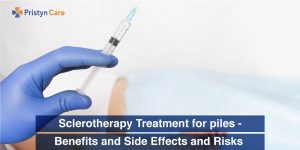 Sclerotherapy Treatment for piles