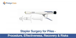 Stapler Surgery For Piles