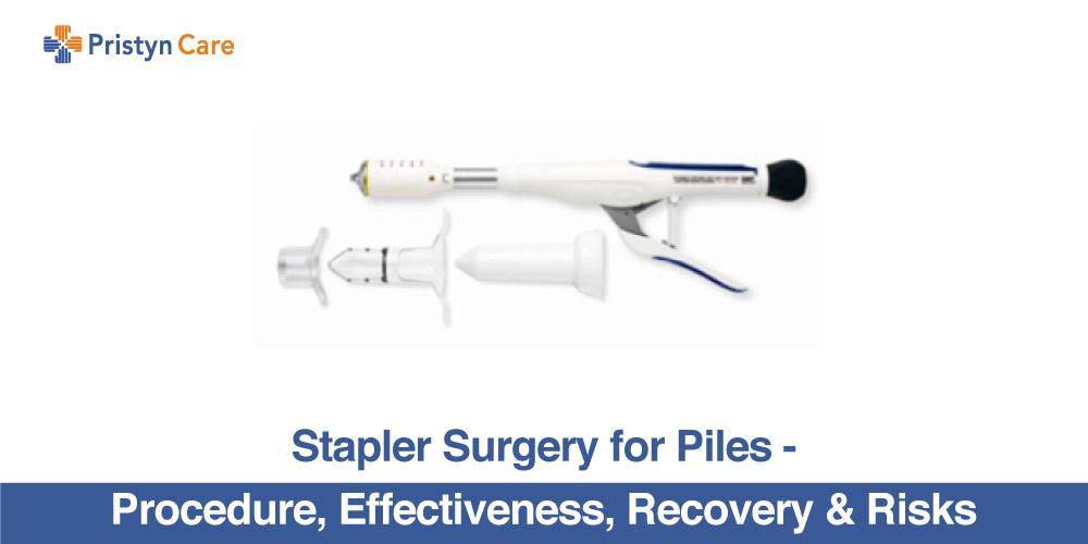 Stapler Surgery For Piles