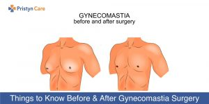 Things-to-Know-Before-and-After-Gynecomastia-Surgery-2