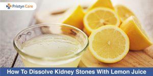 dissolve kidney stones with lemon juice