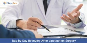 Day-by-day-recovery-after-liposuction