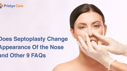 Does-Septoplasty-Change-Appearance-Of-the-Nose-and-Other-9-FAQs