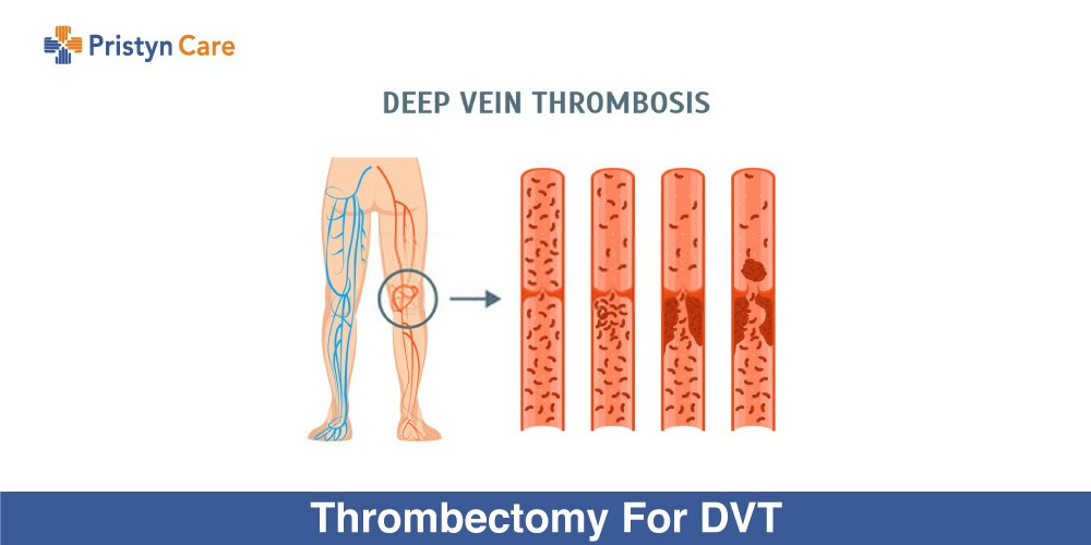 Thrombectomy-For-DVT