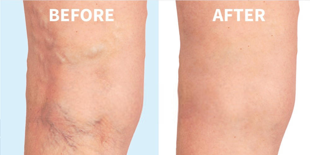 before and after varicose veins treatment-laser treatment