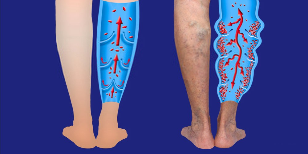 deep vein thrombosis- swelling and pain in lower leg