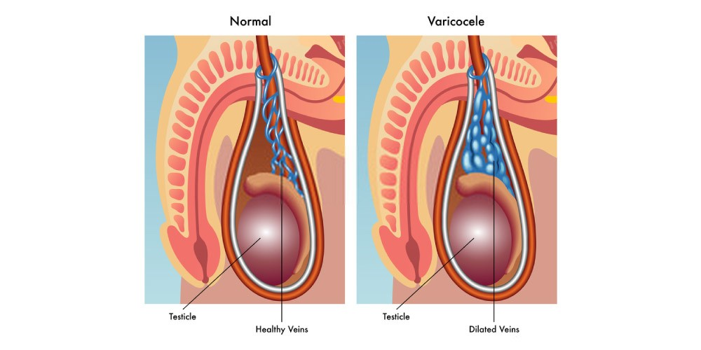 normal testes and testes affected with varicocele