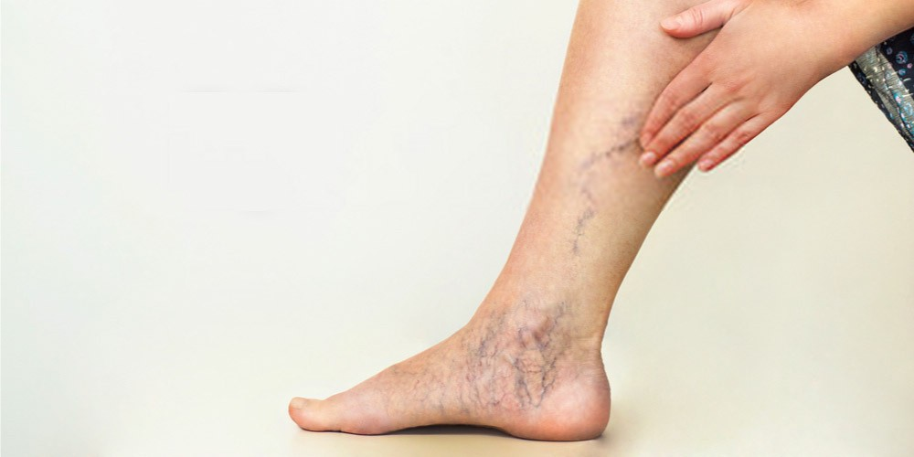 varicose veins in the lower leg