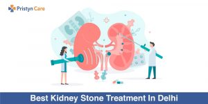 Best-Kidney-Stone-Treatment-In-Delhi